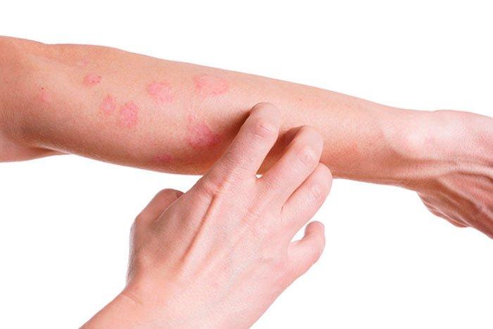 alergias de pele