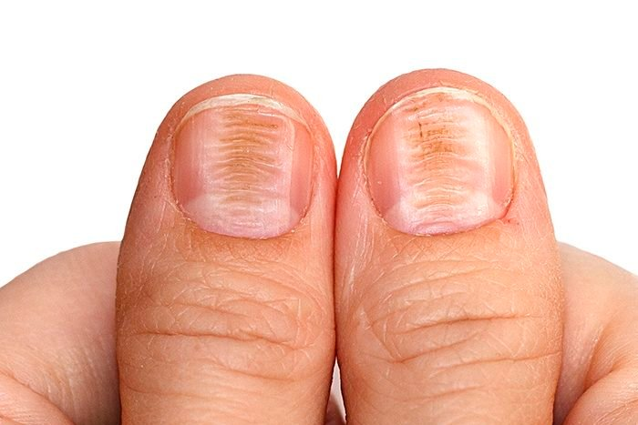 As unhas podem mostrar sinais de doenças?