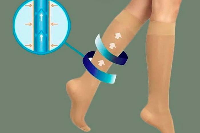Como as meias de compressão funcionam?