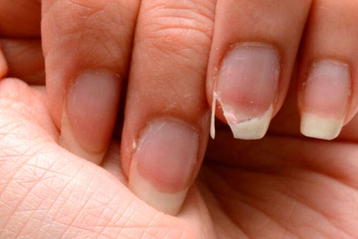 O que fazer contra o enfraquecimento de unhas?