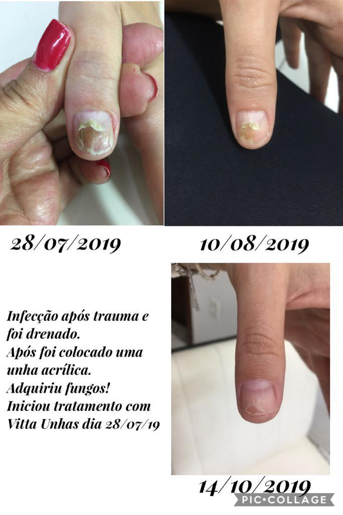 Vitta Unhas & Pés
