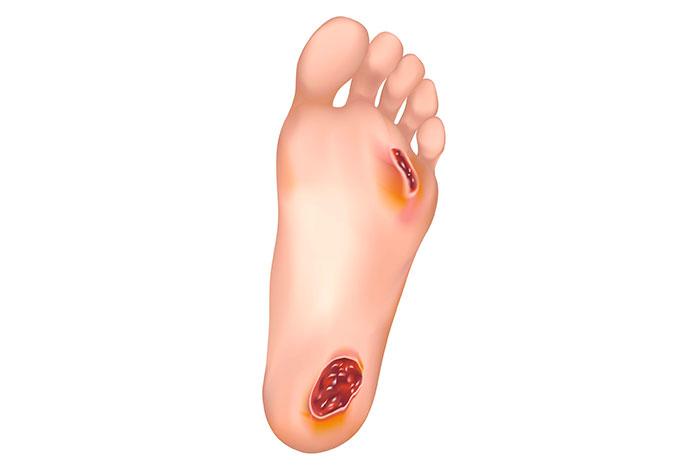O que são pés diabéticos